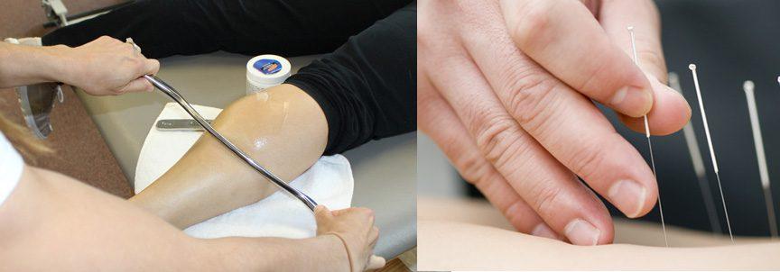graston-dry-needling